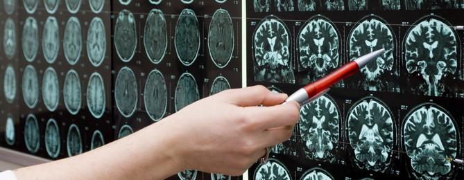 mecanique_du_cerveau